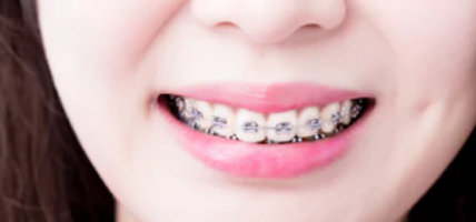 Oral Care During Orthodontic Treatment