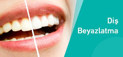 Dişler Beyazlığını Neden Kaybeder, Nasıl Korunmalıdır?