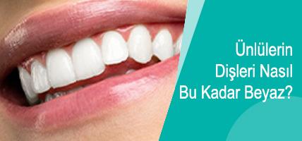 Ünlülerin Dişleri Nasıl Bu Kadar Beyaz?