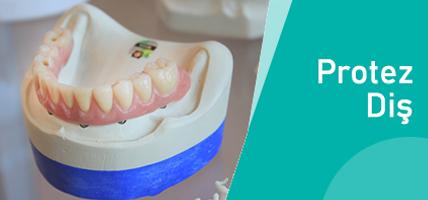 Protez Diş Nedir? Dişlerimin Protez Diş Olduğu Anlaşılır Mı?