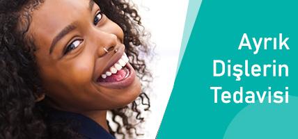 Ayrık Dişlerin Çözümü, Tedavisi