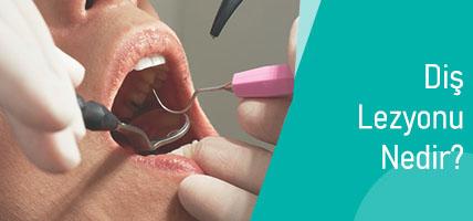Diş Lezyonu Nedir? Neden oluşur?