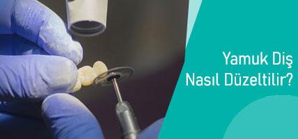 Yamuk Diş Nasıl Düzeltilir? Diş Yamukluğu Tedavisi