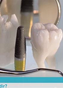 Dikişsiz implant nedir? - Doktor TV