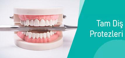 Tam Diş Protezleri Tedavi Süresi Ne Kadar Sürer?