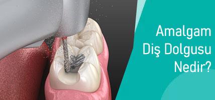 Amalgam Diş Dolgusu Nedir? Neden Sökümü Tavsiye Edilir?