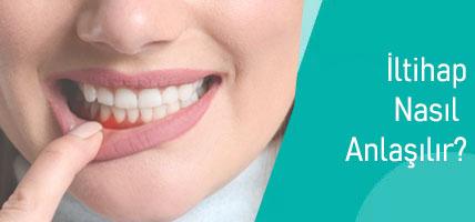 Diş Etinde İltihap Olduğu Nasıl Anlaşılır? Diş İltihabı Nedir?