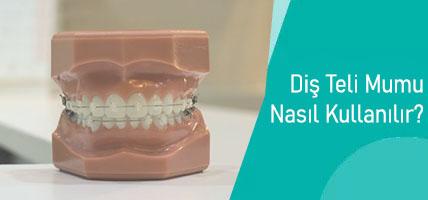 Diş Teli Mumu Nasıl Kullanılır?