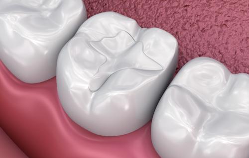 Organik Diş Dolgusu Hakkında Detaylı Bilgilendirme
