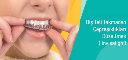 Diş Teli Takmadan Çapraşıklıkları Düzeltmek Mümkün: Invisalign